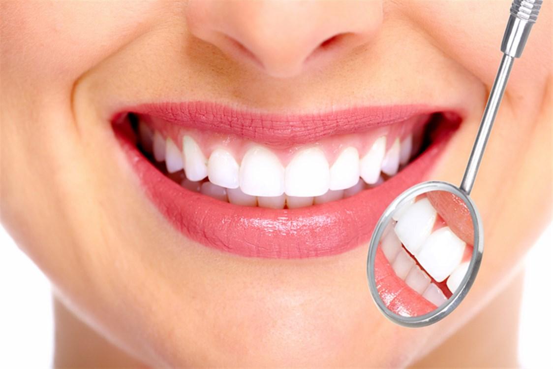 ازالة جير الاسنان تجربتي