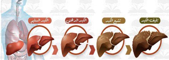 ما هي اسباب تليف الكبد ؟