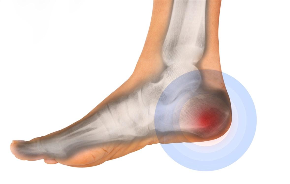 علاج مسمار القدم العظمي
